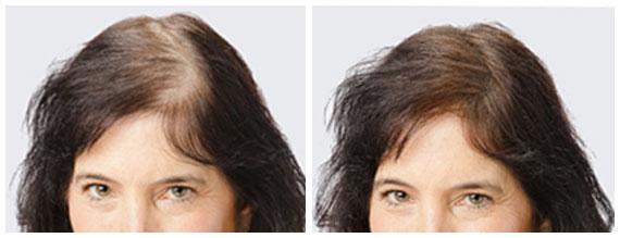 Sulsen die Salbe vom Haarausfall